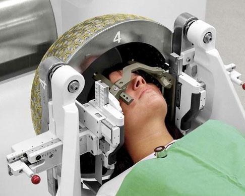 Лучевая терапия опухоли мозга в Израиле